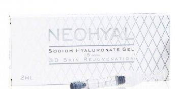 Биоревитализация препаратом NEOHYAL