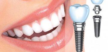 Зубная арифметика
