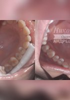 Лечение среднего кариеса 15,16,17 зубов Восстановление Gradia Pa3,A3