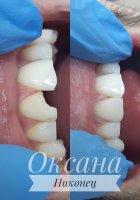 Эстетическая реставрация 11 зуба