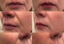 Коррекция носогубных складок препаратом Ювидерм 3 1 мл