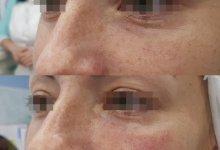 Коррекция носослезной борозды препаратом Juvederm volift с помощью канюли.
