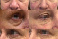 Коррекция носослезной борозды препаратом Princess Filler