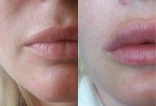Увеличение объема губ и заполнение носогубной борозды филлерами на основе ГК