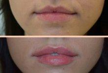 Увеличение объема губ препаратом juviderm