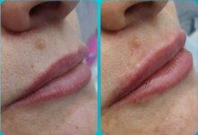 Коррекция объема губ филлером на основе гиалуроновой кислоты. ДО и сразу ПОСЛЕ процедуры