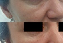 Коррекция носослезной борозды филлером на основе ГК