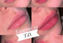 Увеличение губ. Препарат- Princess Volum 1мл . Работа врача-косметолога дерматолога  Каштело Т.О.