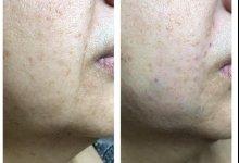 Коррекция мелких и средних морщин препаратом JUVEDERM ULTRA 3.Фото До и после. Работа Врача-косметолога, дерматолога Амбарян В.А.