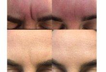 Ботокс. Работа врача-косметолога дерматолога  Каштело Т.О.