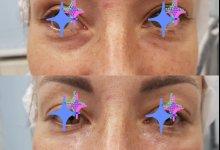 Коррекция носослезной борозды препаратом Juviderm Volift с помощью канюли. Работа врачей-косметологов: Никоновой В.А. и Амбарян В.А.