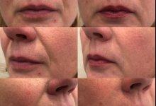 Коррекция носогубной борозды препаратом Juviderm Ultra 3 с помощью канюли. Работа врача-косметолога Каштело Т.О.