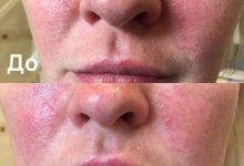 Процедура - фотоомоложение. Аппарат Skin Station Mistral(Израиль).  Фото до и после