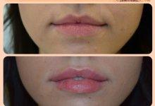 Увеличение объема губ. Фото до и после