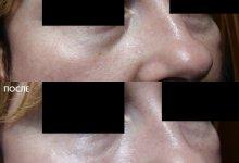 Коррекция носослезной борозды. Врач - косметолог Никонова В. А